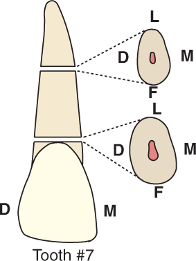 An illustration shows tooth #7, the maxillary lateral incisor and its cross section.