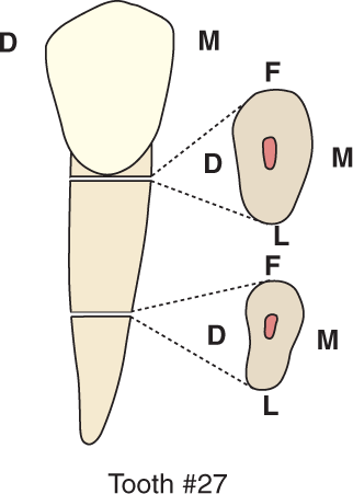 An illustration shows tooth #27, the mandibular canine and its cross section.