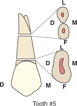 An illustration shows tooth #5, the maxillary first premolar and its cross section.