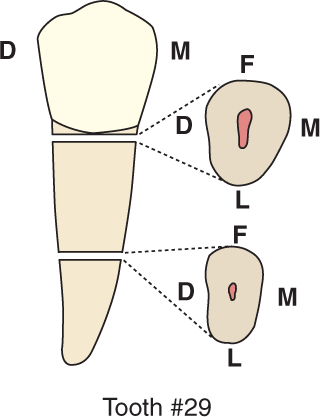 An illustration shows tooth #29, the mandibular second premolar and its cross section.