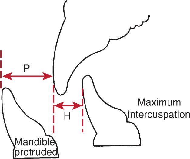 An illustration shows the mandible protruded and maximum intercuspation.