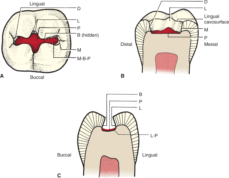 Three illustrations show a conventional class I cavity preparation for amalgam on tooth #31.