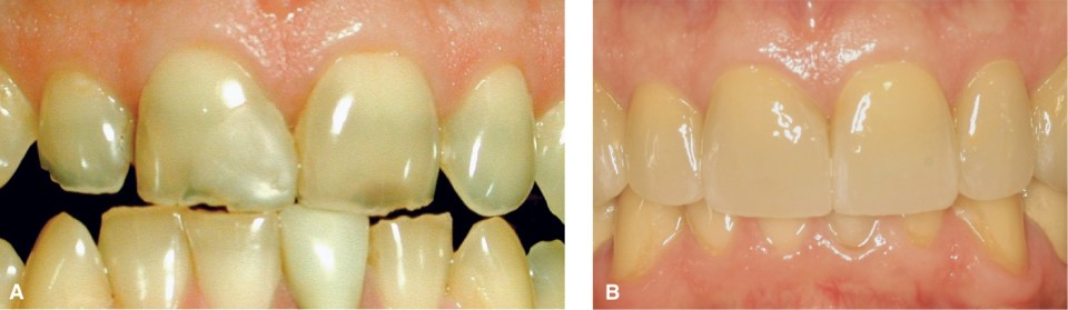 Photo A shows thin, badly damaged maxillary incisors. Photo B shows the same incisors after placing all ceramic restorations.