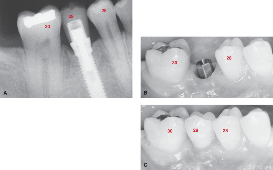 Photos A, B, and C show a dental implant. Tooth #29 was lost and replaced with a dental implant.