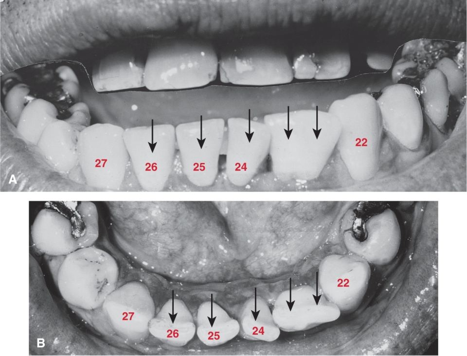 Photos A and B show the germination twinning for tooth #23.