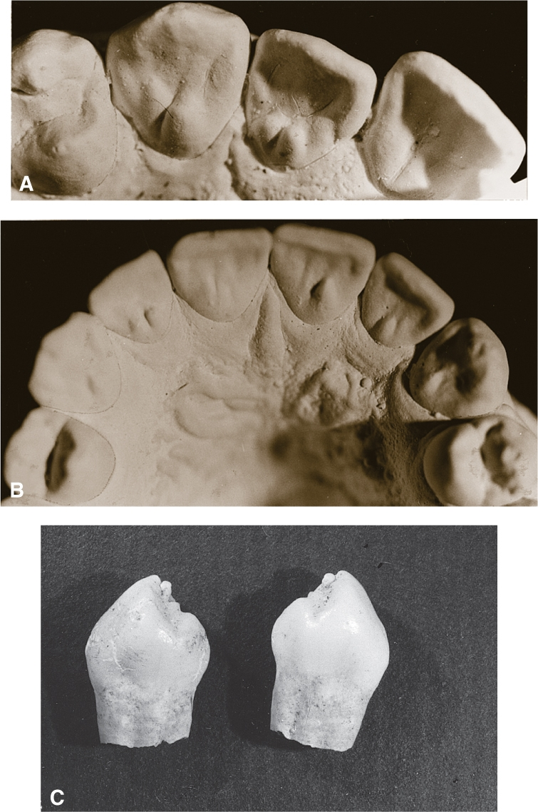 Photos A, B, and C show tubercles.