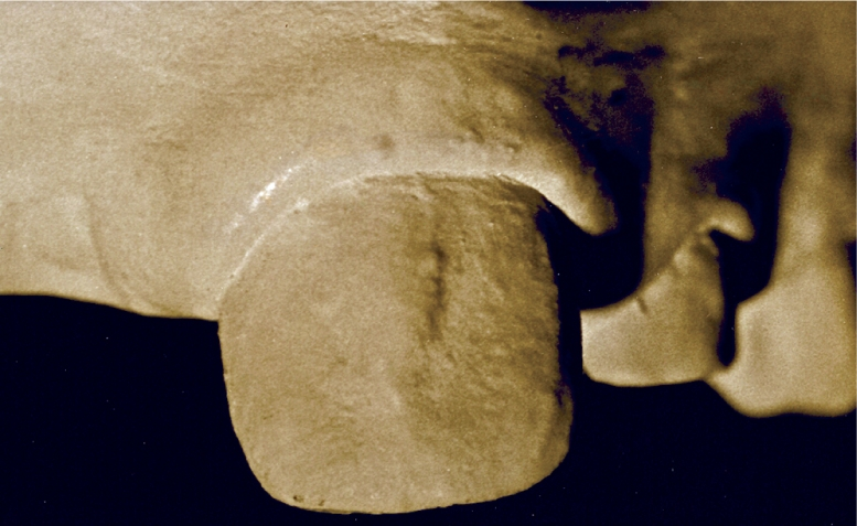 A photo shows unusually prominent labial ridge on a secondary maxillary central incisor.