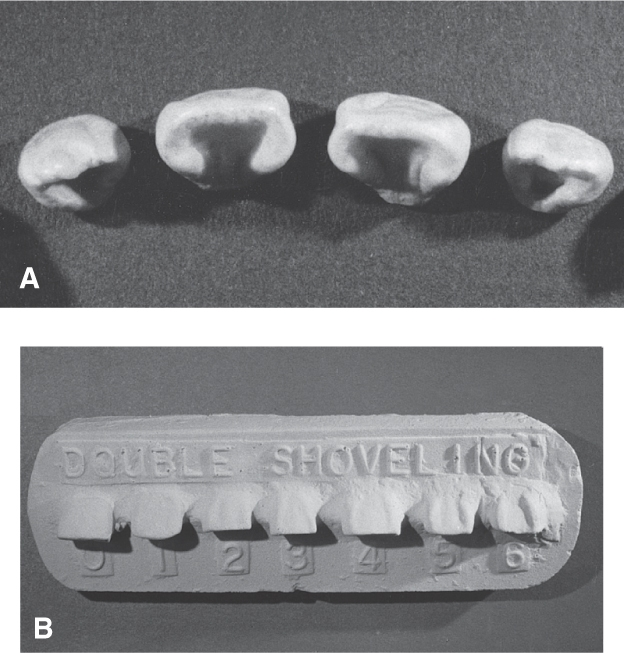 Photo A shows shovel-shaped permanent incisors. Photo B shows The range of prominent labial ridges on double-shovel-shaped incisors varying from labial ridges on the left to more prominent labial ridges on the right.