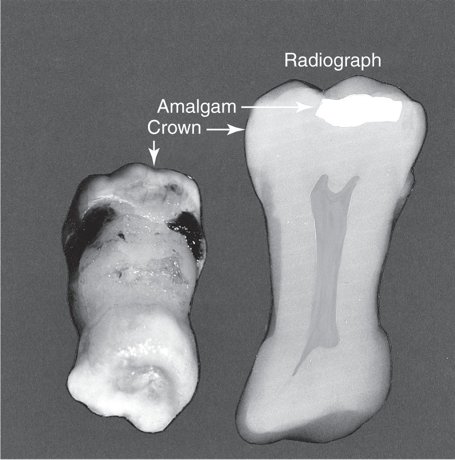 A photo shows extracted tooth on the left; radiographic shape is outlined on the right with amalgam labeled at the crown.