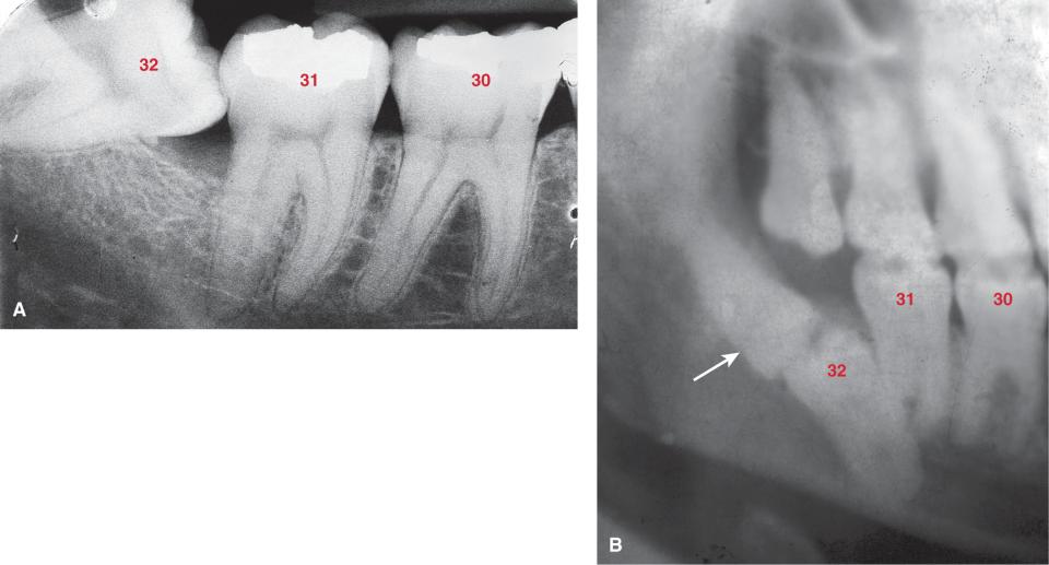 Photos A and B show an impacted mandibular third molar.
