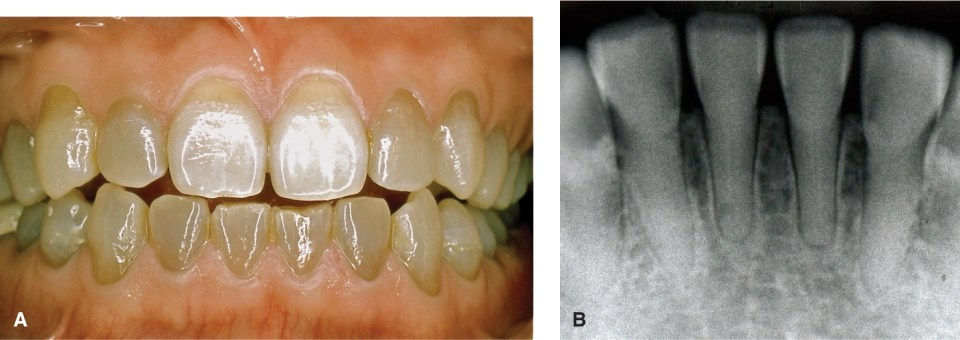 Photo A shows the teeth with a gray or yellow opalescent appearance. Photo B shows a radiograph which reveals the total or partial lack of pulp chambers and canals.