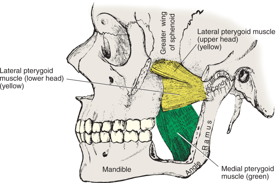 An illustration shows a lateral view of two heads of the lateral pterygoid muscle and the medial pterygoid muscle with the zygomatic arch and the anterior part of the ramus removed.