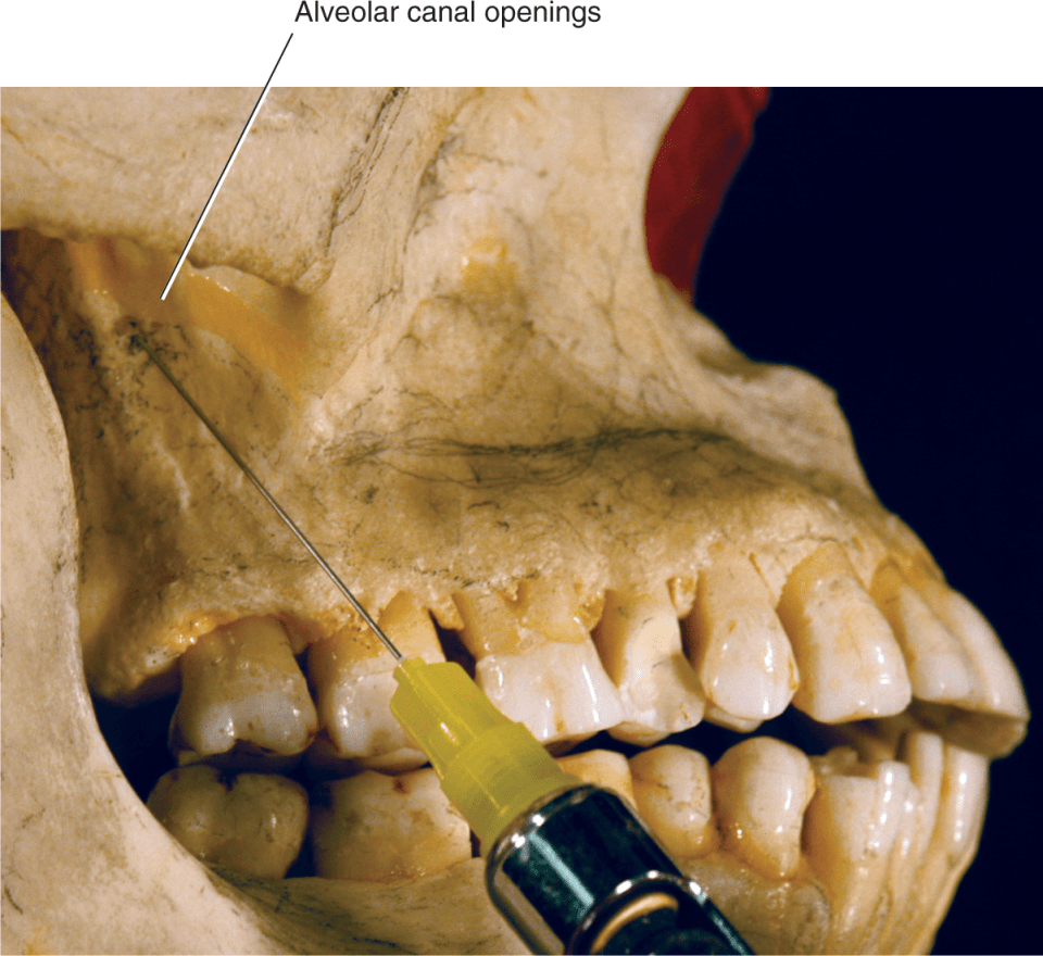 An illustration shows an anesthetic syringe needle aimed toward the alveolar canals.