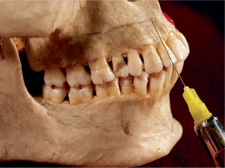An illustration shows the anesthetic syringe needle being aimed parallel to the contour of the maxilla to reach the level of the root ends of the maxillary anterior teeth.