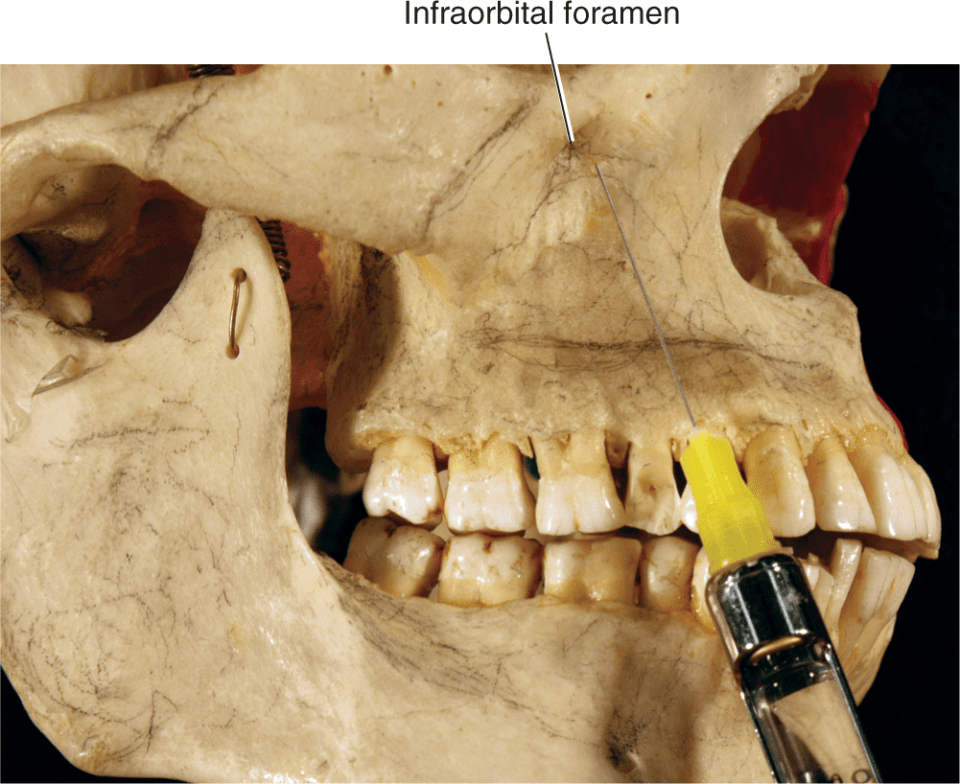 An illustration shows the anesthetic syringe needle being aimed parallel to the contour of the maxilla to reach the level of the infraorbital nerve.