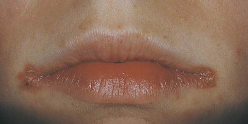 Salivary Glands Lips