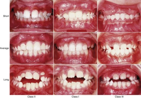 Memperbaiki Maloklusi- Global Estetik Dental Care