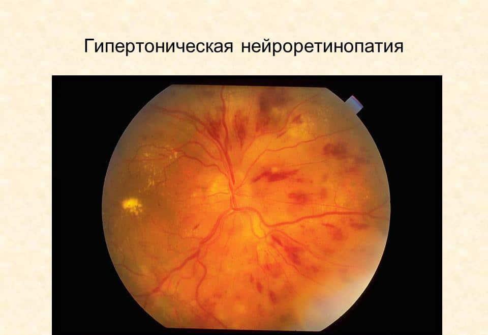 Гипертоническая ретинопатия картинки