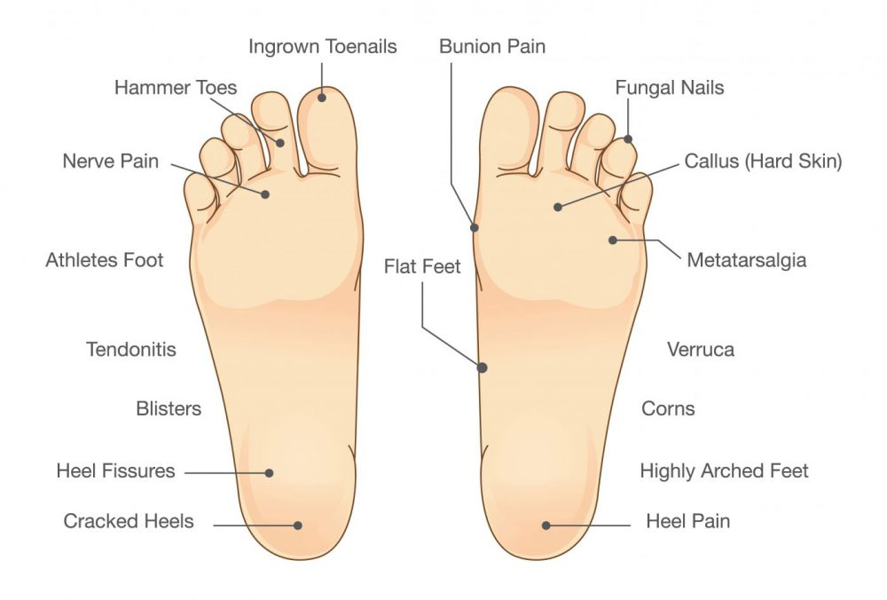Foot problem diagram