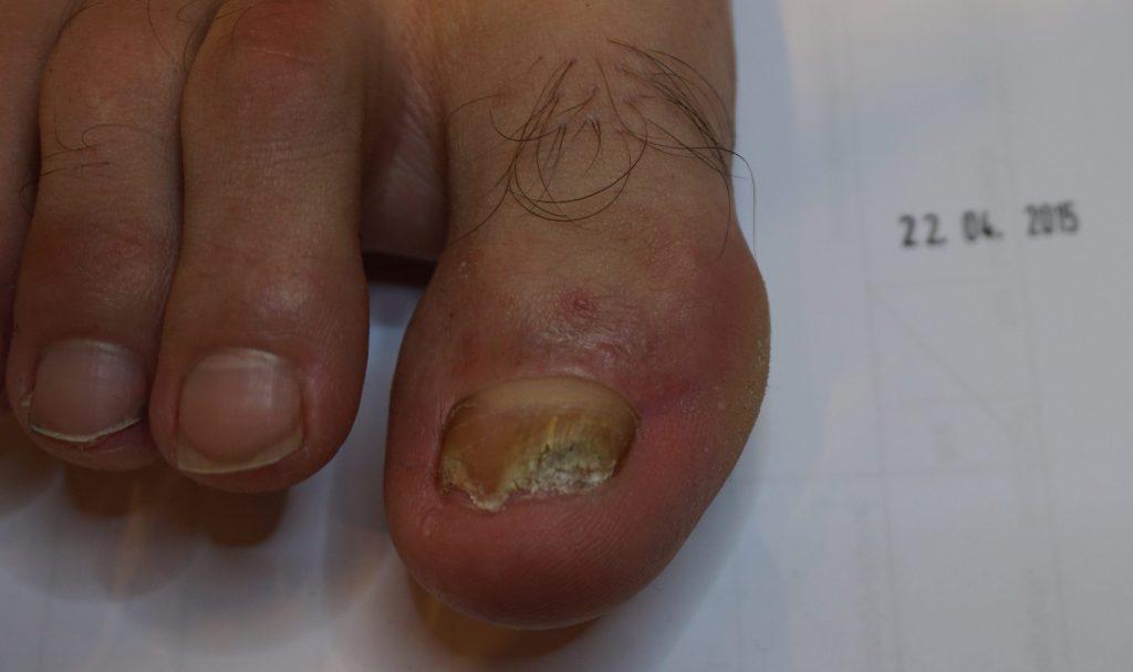 Grzybica paznokci – leczenie