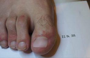 Rekonstrukcja paznokcia - grzybica paznokci