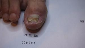 wizyta kontrolna - grzybica paznokci