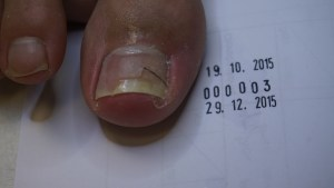 klamra korygująca wrastanie paznokcia - grzybica paznocki