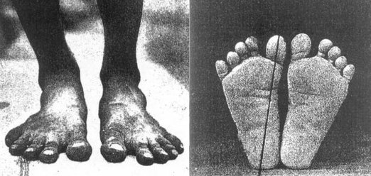 native-barefooter-feet