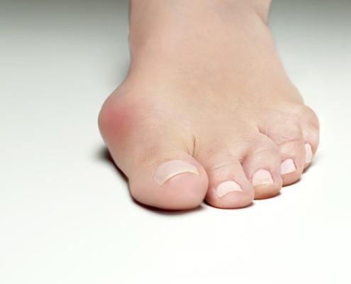 déformation du pied hallux valgus