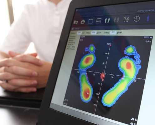 expertise en podologie du sport analyse des empreintes plantaires informatisée