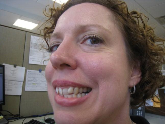 Cilantro tooth
