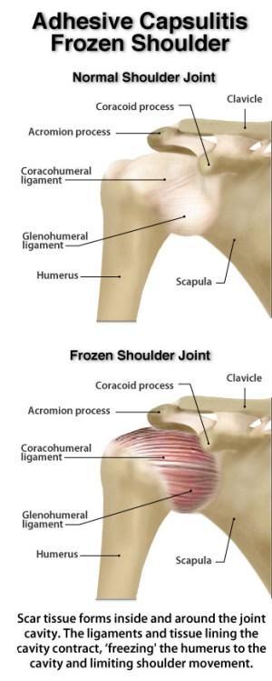 A Review of Current Frozen Shoulder Treatment Options