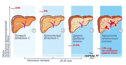 Гепатит, цирроз және т.б. фиброзға әкелуі мүмкін.