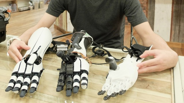prosthetic-arms
