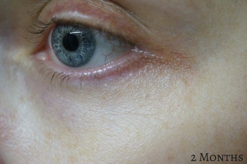 Laser milia removal 2 months later