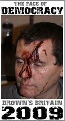 tony ward injured