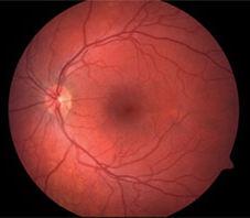 retina