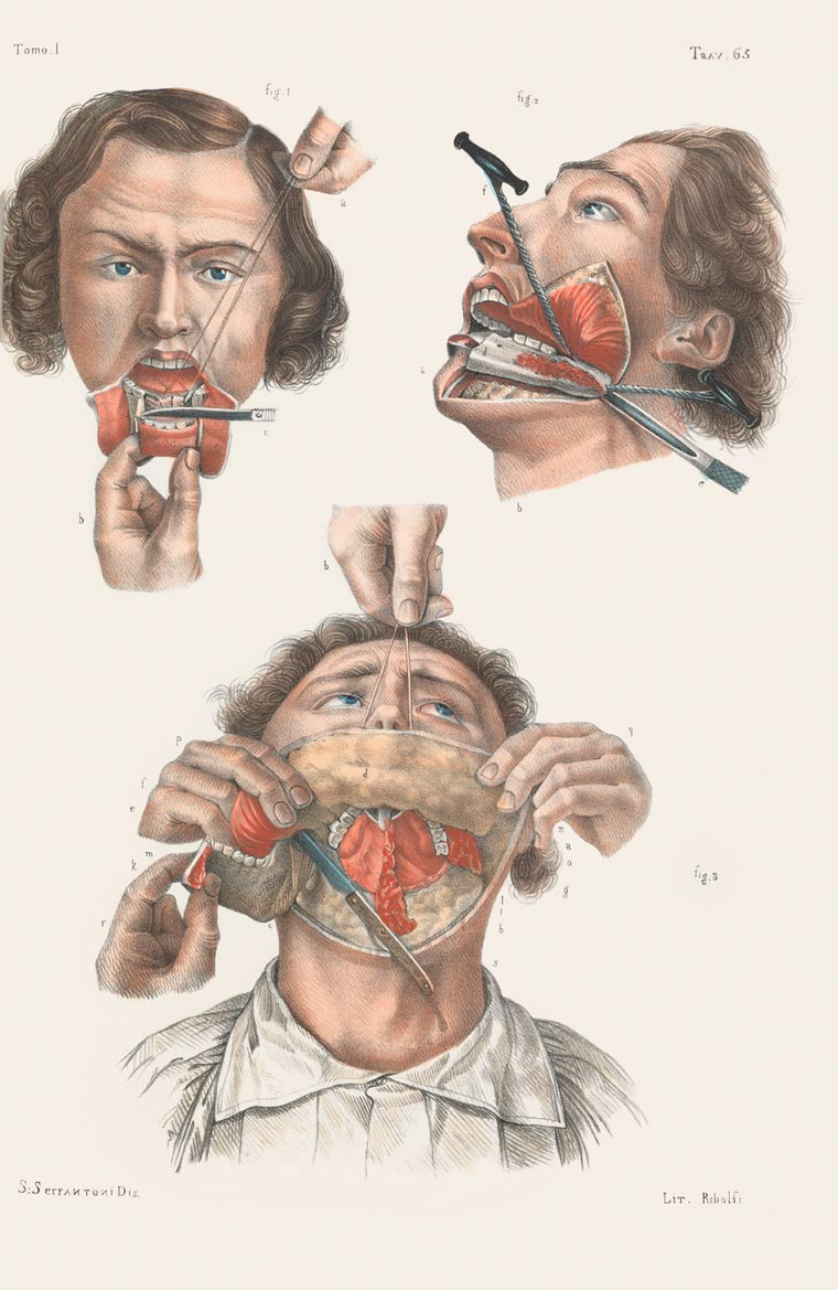 Disturbing Vintage Medical Illustrations Richard-Barnett 3