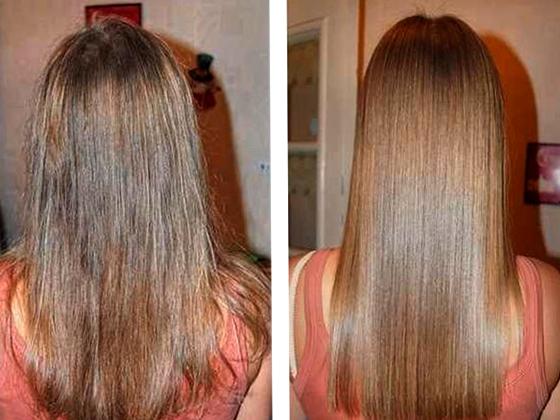 olja för hårväxt