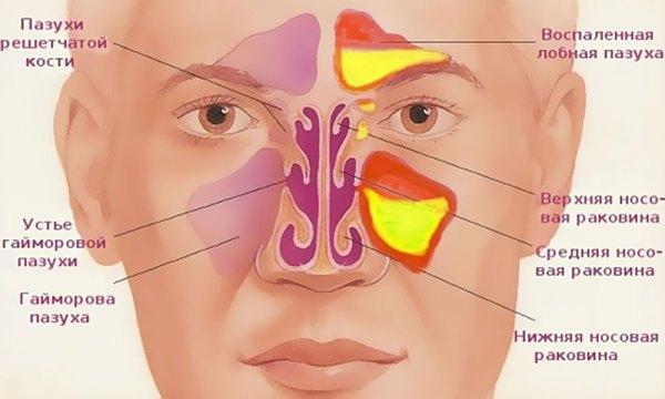 Синусит гайморит причины симптомы и лечение