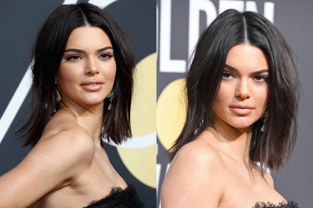 以高貴冷艷造型出席金球獎的 Kendall Jenner  竟然因為這個皮膚問題而被網民批評