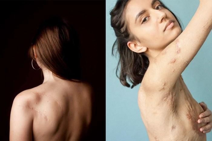 攝影師紀錄「Behind The Scars」系列傳達與眾不同的美,卻因為「不適當」遭 FB 全刪除!