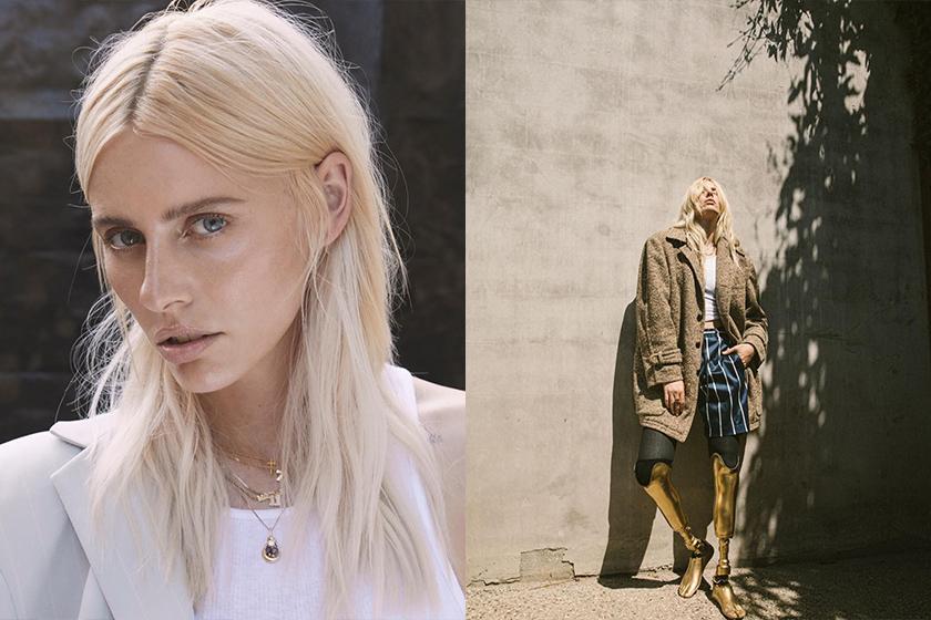 America model Lauren Wasser