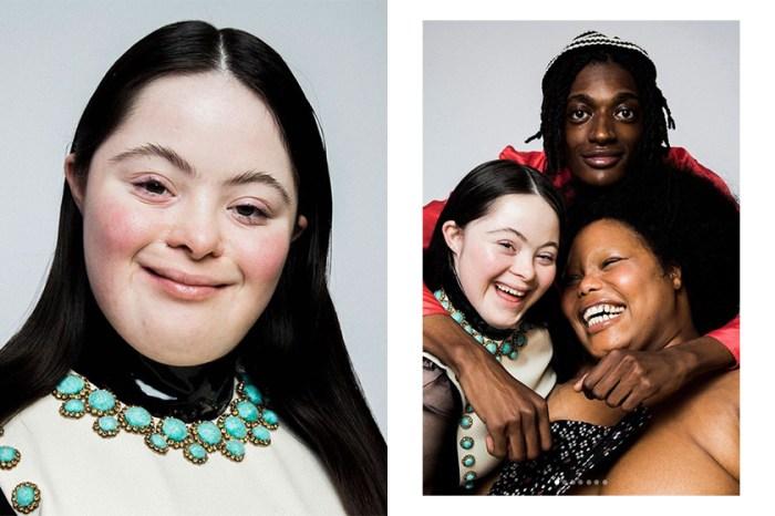 以行動證明美麗無界限:Gucci 這個由唐氏綜合症少女當模特兒的廣告,獲得歷史最高評價!