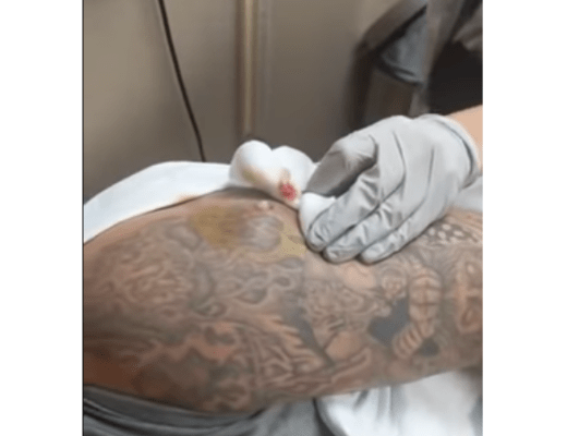 Cyst Back Popping Man S