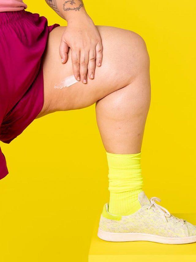 Coxas grossas? Conheça cremes anti atrito para evitar assaduras