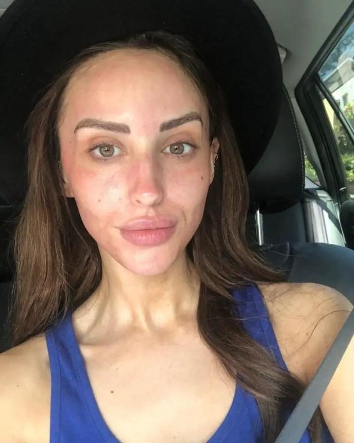 MAFS Lizzie no makeup & lip fillers.