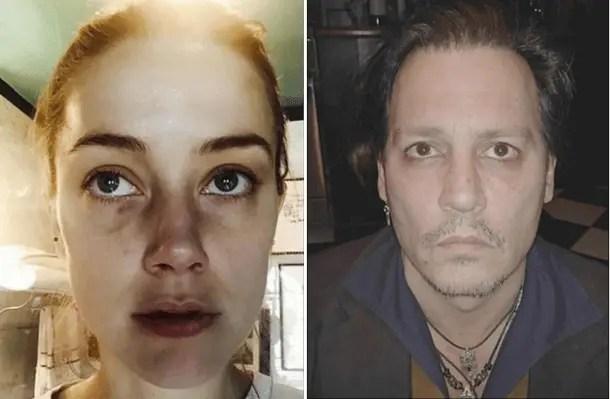 Amber Heard fake injuries