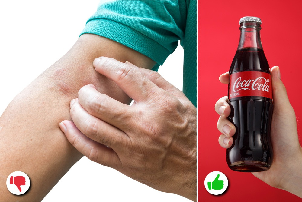 10 Amazing Uses You Never Knew About for Coca-Cola - Coco-Cola Used as Pain Killer