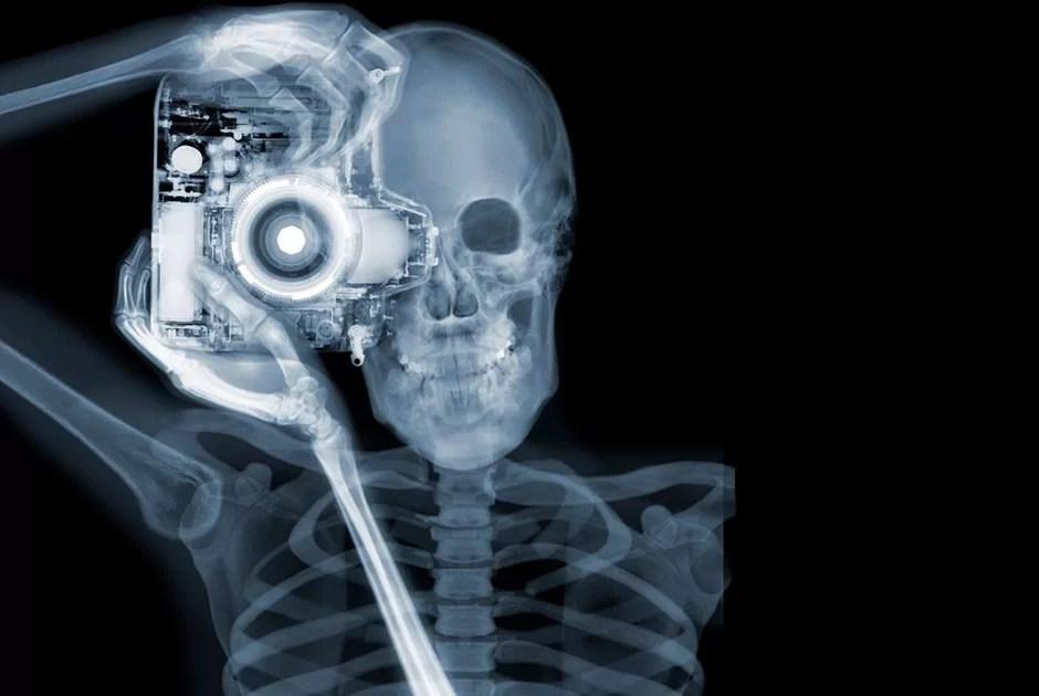 Российские ученые смогли снять рентгеновской кино
